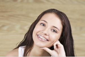 braces-girl